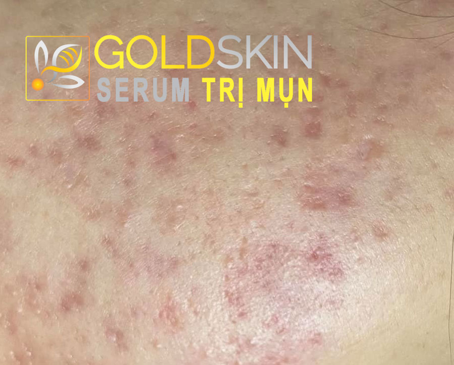 Nhiều người sau một thời gian sử dụng kem trị mụn bọc thì da bắt đầu chảy xệ, đen, thâm và nổi nhiều mụn hơn