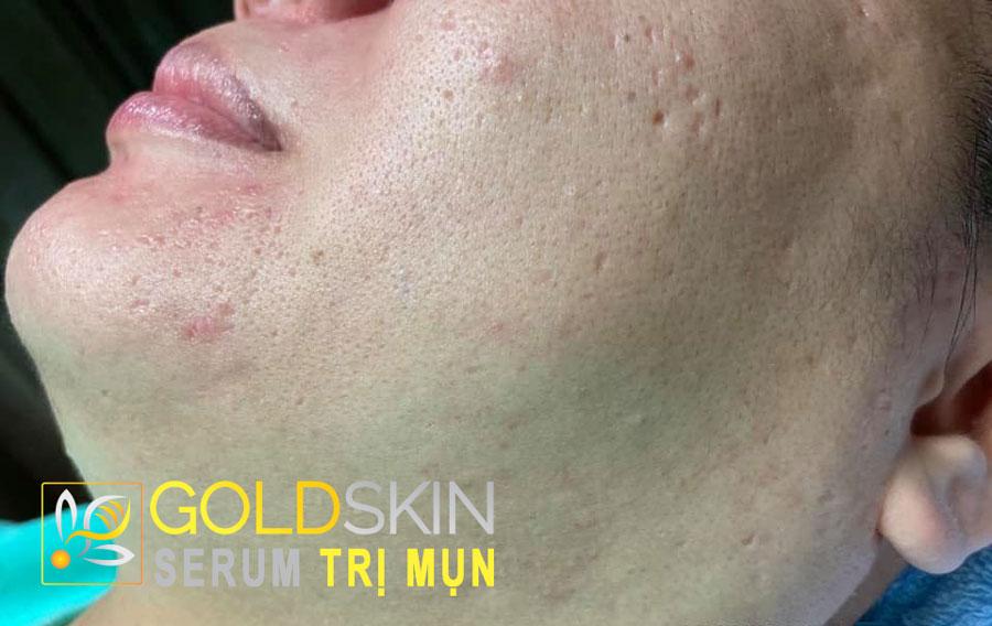 Do da tôi thuộc dạng da dầu mà còn nhạy cảm nữa nên tôi dễ bị mụn