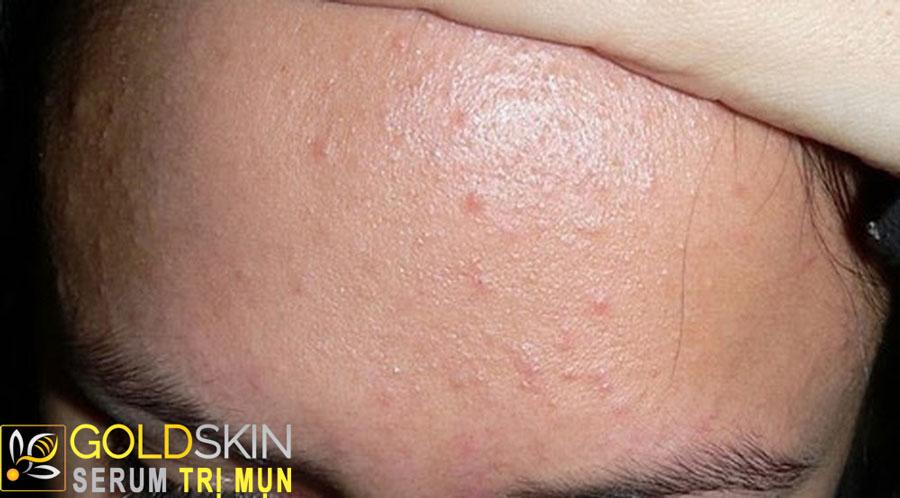Mụn thường nằm sâu bên dưới da, không gây viêm, không trồi cồi mụn và không gây đau nhức