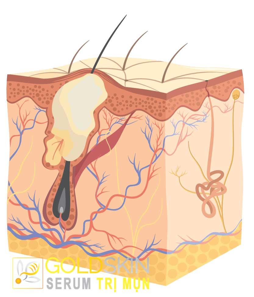 Hình ảnh lát cắt của da mụn bọc