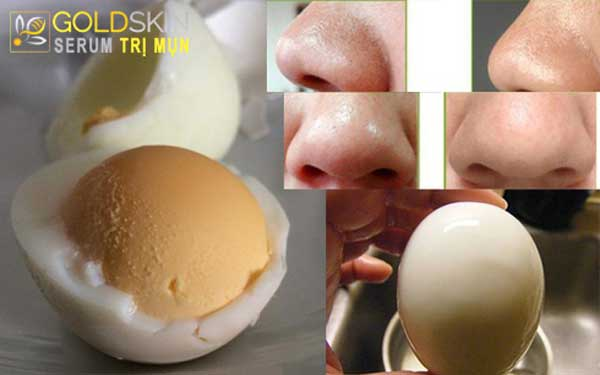 Cách lăn trứng gà luộc trị mụn đầu đen ở mũi