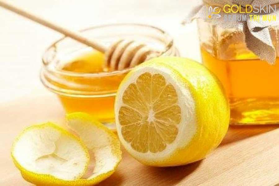 Mật ong và chanh là một công thức hoàn hảo giúp trị mụn ẩn hiệu quả