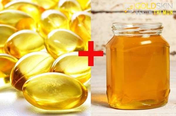 Trị mụn bằng vitamin e và mật ong giúp giảm sưng viêm nhanh chóng