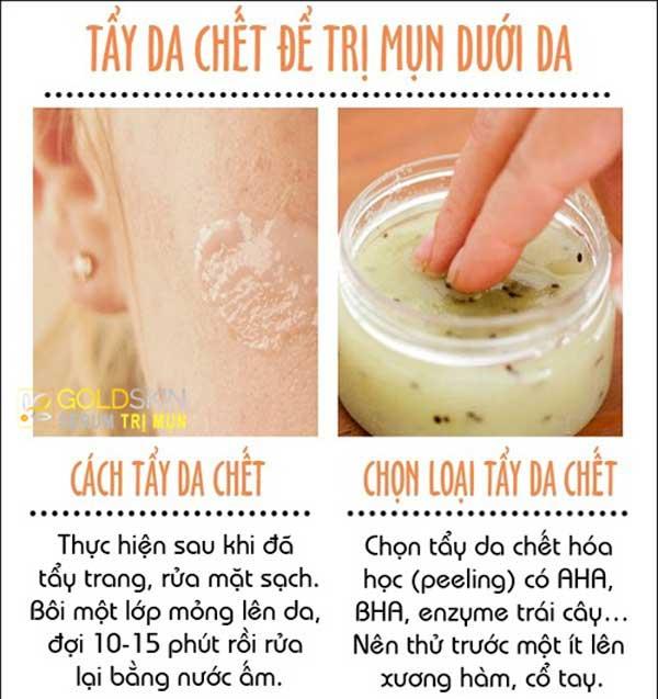 Những điều bạn cần lưu ý để ngăn ngừa và trị mụn ẩn dưới da