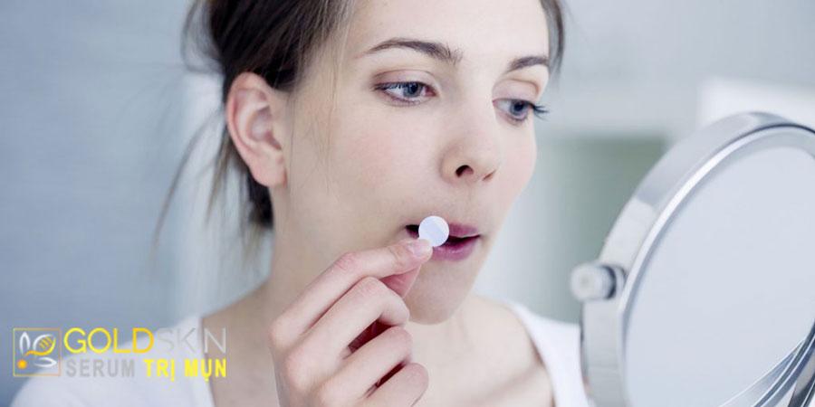 Miếng dán mụn là một cách giúp bảo vệ mụn dưới da khỏi vi khuẩn gây viêm.