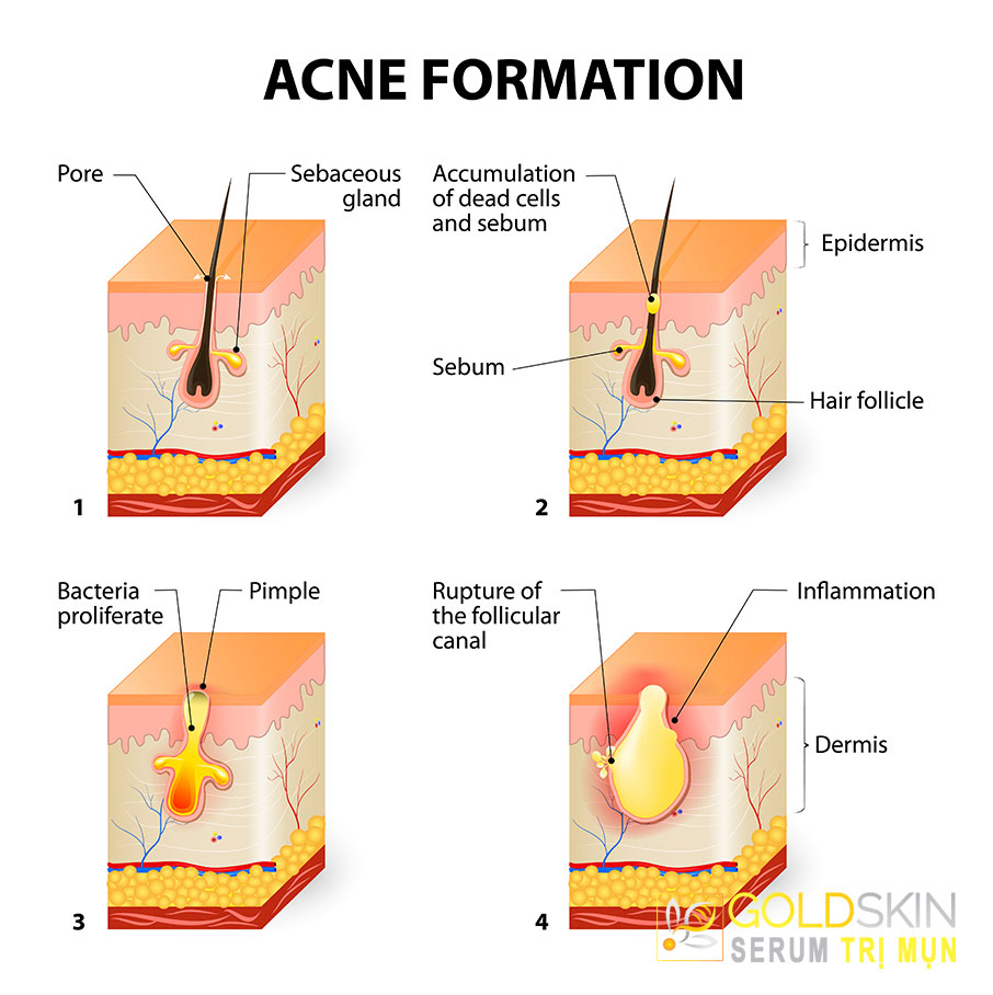 Tuyến dầu quá tải là nguyên nhân chính hình thành mụn dưới da.