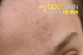 Cách điều trị và chăm sóc cho da mặt bị mụn ẩn?