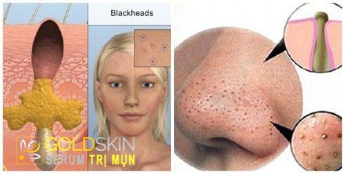 Mụn đầu đen là gì?
