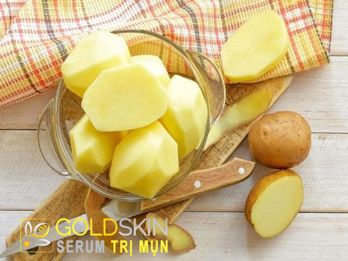 Trị mụn đầu đen hiệu quả bằng khoai tây