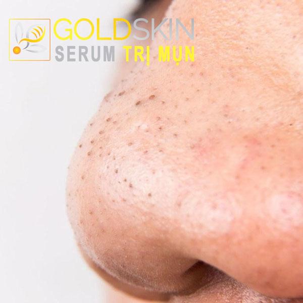 Mụn đầu đen được hình thành chính từ chất bã nhờn và và các tế bào da chết đã tích tụ trong chân lông