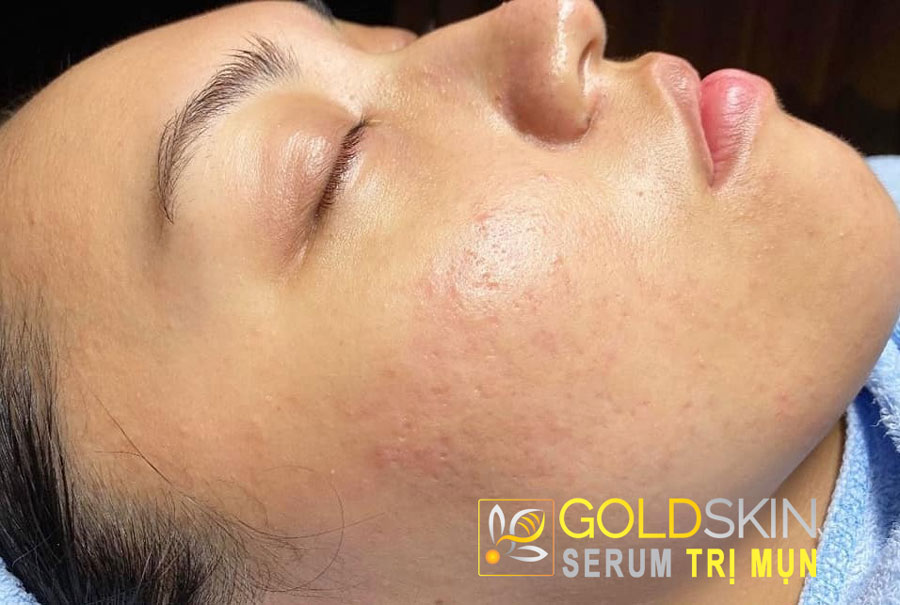 Chỉ sau 1 tháng sử dụng serum Goldskin đã hoàn toàn sạch mụn, da mịn, đẹp
