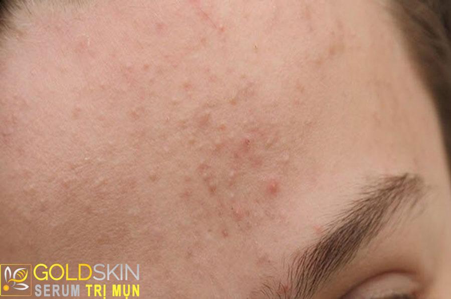 Mụn ẩn mọc li ti và thường trùng màu với da của bạn khiến bạn mất tự tin