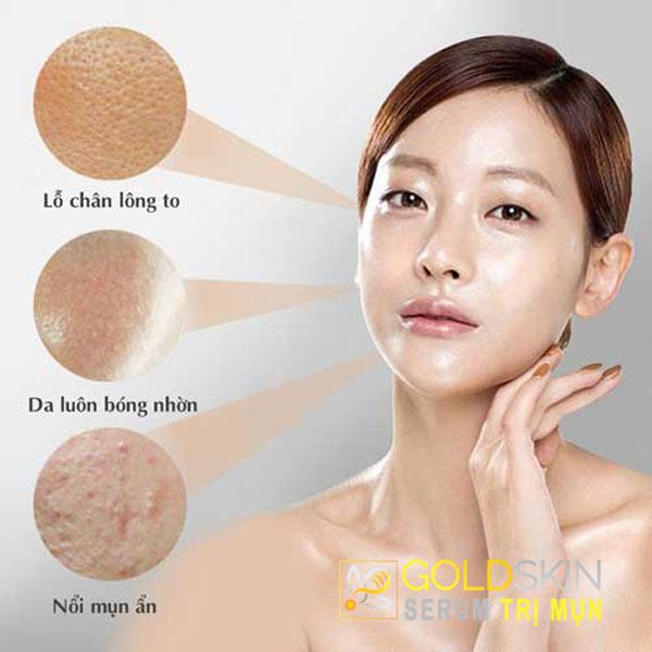 Người có làn da dầu không chỉ thường bị nổi mụn mà còn hay hình thành sẹo thâm.
