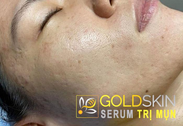 Thật may mắn khi tôi đã tìm ra Goldskin như bí quyết giúp duy trì nét đẹp cho da