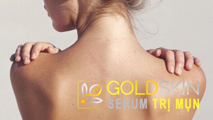 Goldskin là cách trị mụn thâm lưng hiệu quả được đánh giá là nhanh gọn, an toàn