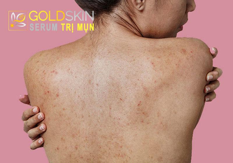 Ngày càng nhiều người gặp phải tình trạng mụn nổi nhiều gây sần sùi, ửng đỏ, lan rộng trên lưng