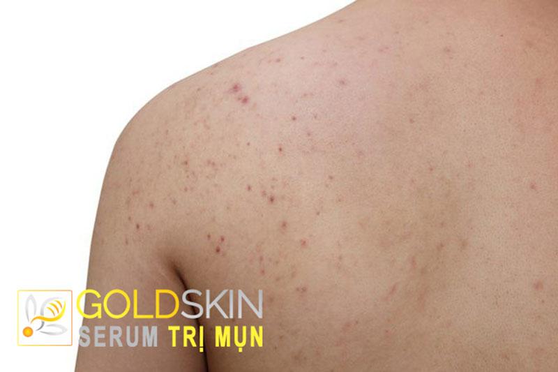 Mụn xuất hiện trên lưng thông thường do sự thay đổi nội tiết tố trong cơ thể của cả nam lẫn nữ