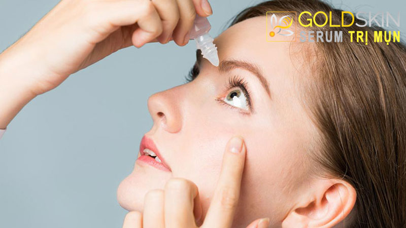 Nghe có vẻ lạ lẫm nhưng thực tế chỉ cần vài giọt thuốc nhỏ mắt thì bạn có thể giảm thiểu tình trạng sưng đỏ của mụn