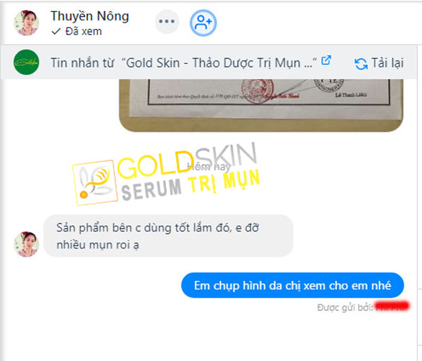 KH phản hồi khi sử dụng Goldskin