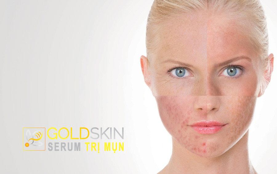 Mình đã rất đau đầu bởi làn da của chính mình, tới lúc có cảm giác sợ không muốn sử dụng bất kỳ sản phẩm nào cho da