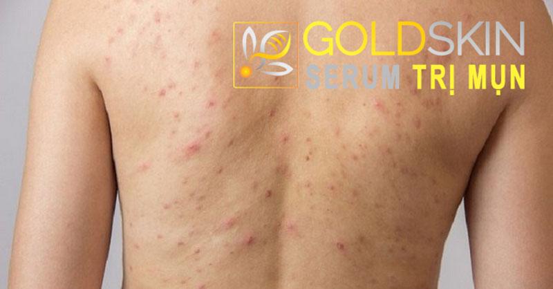 Mụn trên lưng nhiều, dày đặc, sần sùi, ửng đỏ gây đau nhức, ngứa ngáy và mất thẩm mỹ cho người bị
