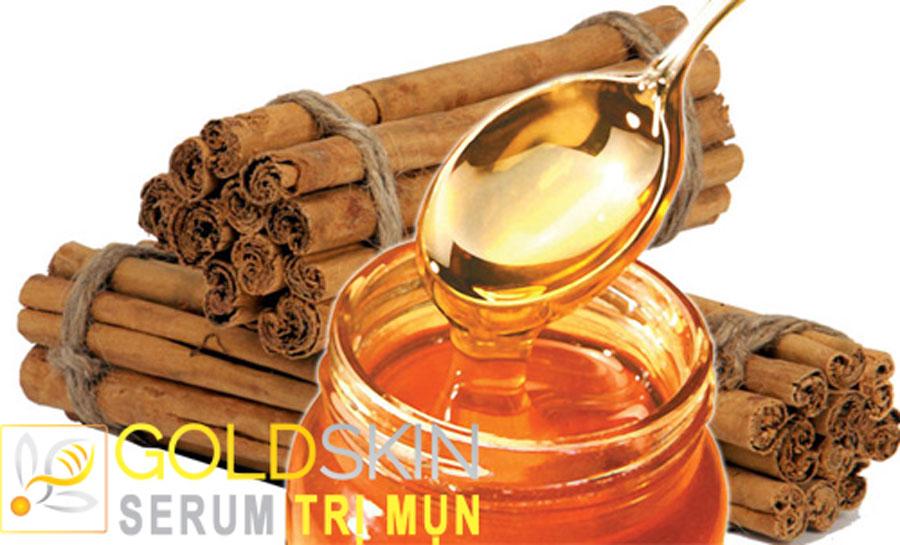 Cách trị mụn hiệu quả nhất ở tuổi dậy thì bằng mật ong và bột quế