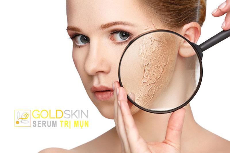 Người sở hữu làn da khô thường phải chịu nhiều vấn đề
