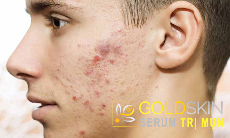 Top những serum trị mụn ẩn mụn bọc an toàn cho mọi loại da