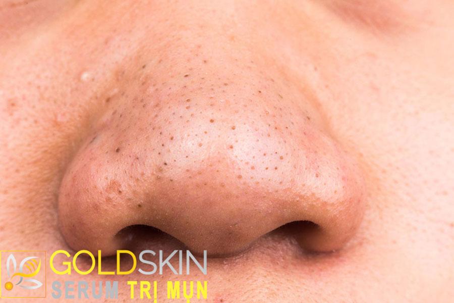Mũi là vị trị thuộc vùng chữ T tiết nhiều bã nhờn rất dễ xuất hiện mụn ẩn dưới da
