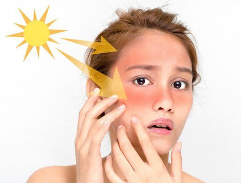 Cách chống nắng cho da mụn